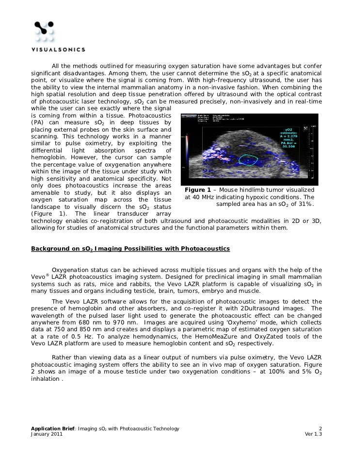 photoacoustic tomography principles and applications